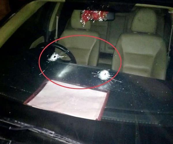 गोली लगने के बाद भी युवक ने नहीं हारी हिम्मत, 2 Km गाड़ी चलाकर पहुंचा अस्पताल
