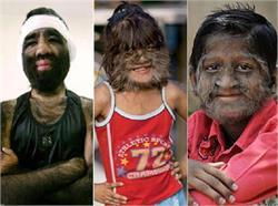 अजीबो-गरीब बीमारी से पीड़ित हैं ये लोग,  तस्वीरें में देखिए