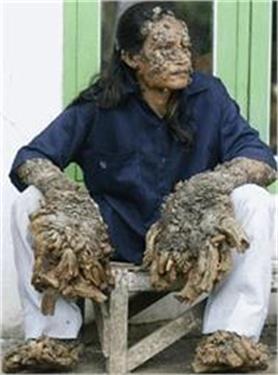दुनिया के ऐसे लोग जो हैं अजीबोगरीब बीमारियों के शिकार (PICS)