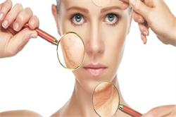 त्वचा में ऑक्सीजन की कमी से चेहरा होता है बेजान (Pics)