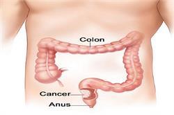 वर्ल्ड कैंसर केयर : बड़ी आंत का कैंसर के लक्षण