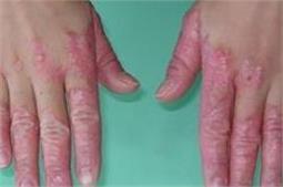 केले के छिलके से होगा सोरायसिस इलाज! (Pix)
