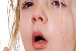 बच्चों में एलर्जी के खतरे को कम करें ये फूड्स! (Pix)