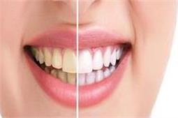 पीलापन होगा दूर, मोतियों जैसे चमकेंगे दांत