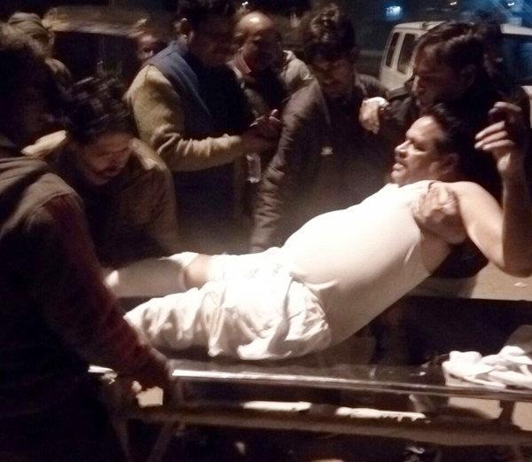 दबंगों का कहर: पहले बीजेपी नेता के भाई को पीटा, फिर बचाने आए सपा नेता का तोड़ा पैर