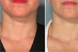 गर्दन की झुर्रियां होगी गायब करें 5 तरह के तेल से मालिश
