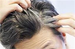 सफेद बाल हो जाएंगे दोबारा काले, ये हैं पक्के नुस्खे!
