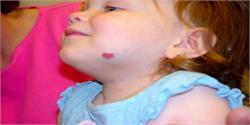 इस तरह मिटाएं रेड बर्थमार्क के निशान (pics)