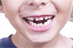 टेढ़े दांतों से यूं पाएं छुटकारा!