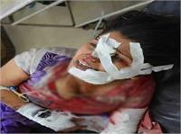 दरिंदगी: गला रेत कर महिला की हत्या, बहन को भी कैंची मार किया लहूलुहान (Pics)