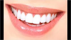 दांतों की यह समस्याएं खुद ही कर लें हल