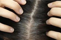 सफेद बालों को काला करने के लिए ट्राई करें ये 5 घरेलू तरीके