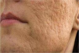 सेंधा नमक से बने इन Scrubs से पाएं चेहरे के गढ्ढों से छुटकारा