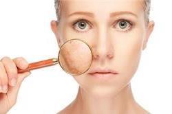 Skin Pigmentation से मिलेगा हमेशा के लिए छुटकारा, अपनाएं ये उपाय!