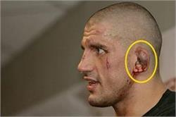 आखिर क्यों होते हैं एथलीटों के एेसे कान, जानने के लिए क्लिक करें