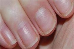 नाखूनों का बदलता हुआ रंग देता है इन बीमारियों के संकेत