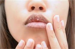 सर्दियों में फटे होंठों को मुलायम बनाएंगी यह Homemade Lip Balm