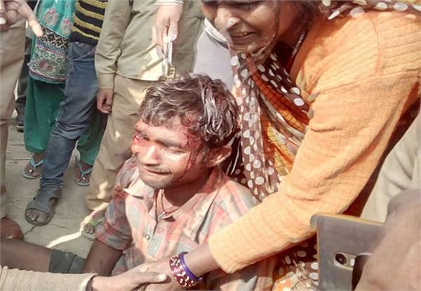 परिवार के 2 पक्षों में जमकर खूनी संघर्ष, जेठ ने बहू को फावड़े से काटा