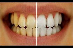 4 Steps और दांतों का पीला हो जाएगा हमेशा के लिए गायब