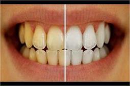 4 Steps और दांतों का पीलापन हो जाएगा हमेशा के लिए गायब