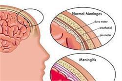 मेनिनजाइटिस के 6 लक्षण, सभी पेरेंट्स को होनी चाहिए इनकी जानकारी
