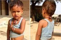 हैरतअंगेजः 3 साल के बच्चे की निकली पूंछ, देखने के लिए लगता है लोगों का जमावड़ा