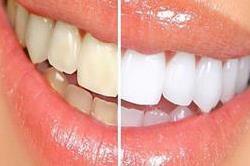 दांत होंगे अपने आप सफेद, फॉलो करें ये रूल्स!