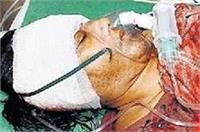 मामूली विवाद पर BJP नेता ने पत्नी को मारी गोली, मामले को दबाने में जुटी पुलिस
