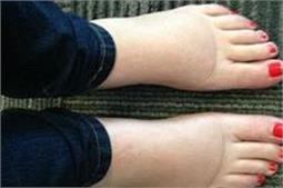 पैरों की सूजन दूर करें ये चमत्कारी नुस्खा!