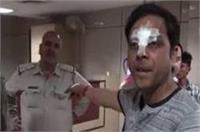 गलत रिपोर्ट न बनाने पर भाजपा नेता ने डॉक्टर को पीटा, जान से मारने की दी धमकी!
