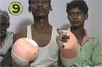 मुरादाबाद: भीख मंगवाने के लिए काटे दोनों हाथ, बेहोश कर किया था अपहरण