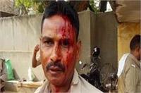 मथुराः हवालात के बाहर दरोगा ने सिपाही का सिर फोड़ा
