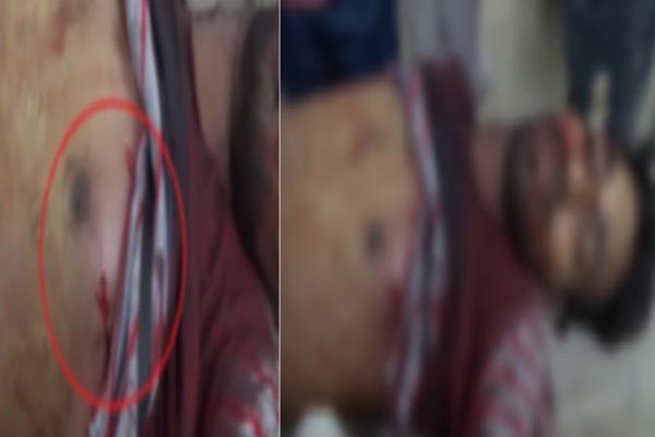 पहले घसीटा..फिर सीने पर दागी 5 गोलियां, देखिए मर्डर की LIVE तस्वीरें