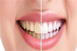 मिनटों में दूर होगा दांतों का पीलापन, बस अपनाएं 5 टिप्स