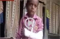 इमाम की बर्बरता, मामूली बात पर छात्र का तोड़ा हाथ