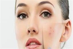 एक ही रात में Pimples का होगा जड़ से खात्मा!
