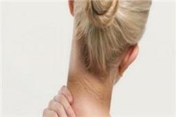 इस एक नुस्खे से 20 मिनट में करें गर्दन का कालापन दूर