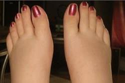 पैरों की सूजन को कम करने के कुछ आसान तरीके
