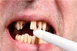सिगरेट-तंबाकू से दांत हो गए हैं खराब तो अपनाएं ये घरेलू नुस्खे