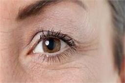 इन तरीकों से दूर करें आंखों के आस-पास की झुर्रियां