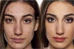 Cystic Acne से छुटकारा दिलाएंगे ये नैचुरल ट्रीटमेंट