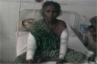 वृद्ध मां पर कलयुगी बेटे का कहर, लाठी-डंडों से पिटाई कर तोड़े दोनों हाथ