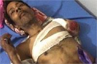 मानवता हुई शर्मसारः ट्रेन की चपेट से घायल मरीज को मरने के लिए शौचालय में फेंका