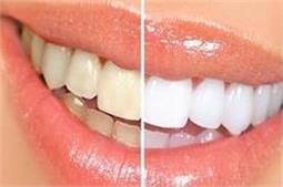 मिनटों में चमकाएं पीले दांत, अपनाएं ये असरदार उपाय