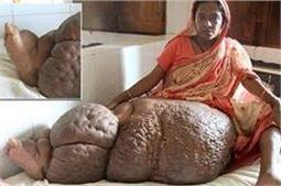 60 Kg का है इस महिला का पैर, तस्वीरें देख रह जाएंगे दंग!