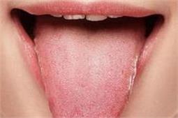 जीभ के रंग से जानें अपनी सेहत का हाल