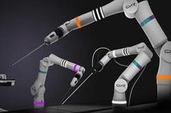 टेक्नोलॉजी का बेहतरीन नमूना है यह नया सर्जिकल रोबोट ''वर्सियस''