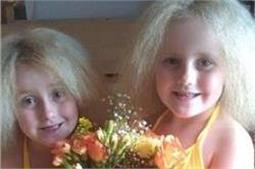 जिंदादिली की मिसाल हैं ये जुड़वा बहनें, बीमारी भी न छीन सकी इनकी हंसी!