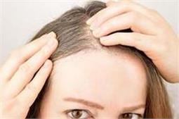 गलती से भी न लगाएं बालों पर ये चीजें, नहीं तो झड़ने लगेंगे बाल!