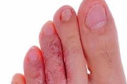 पैरों की फंगल इंफैक्शन से राहत दिलाते हैं ये असरदार नुस्खे